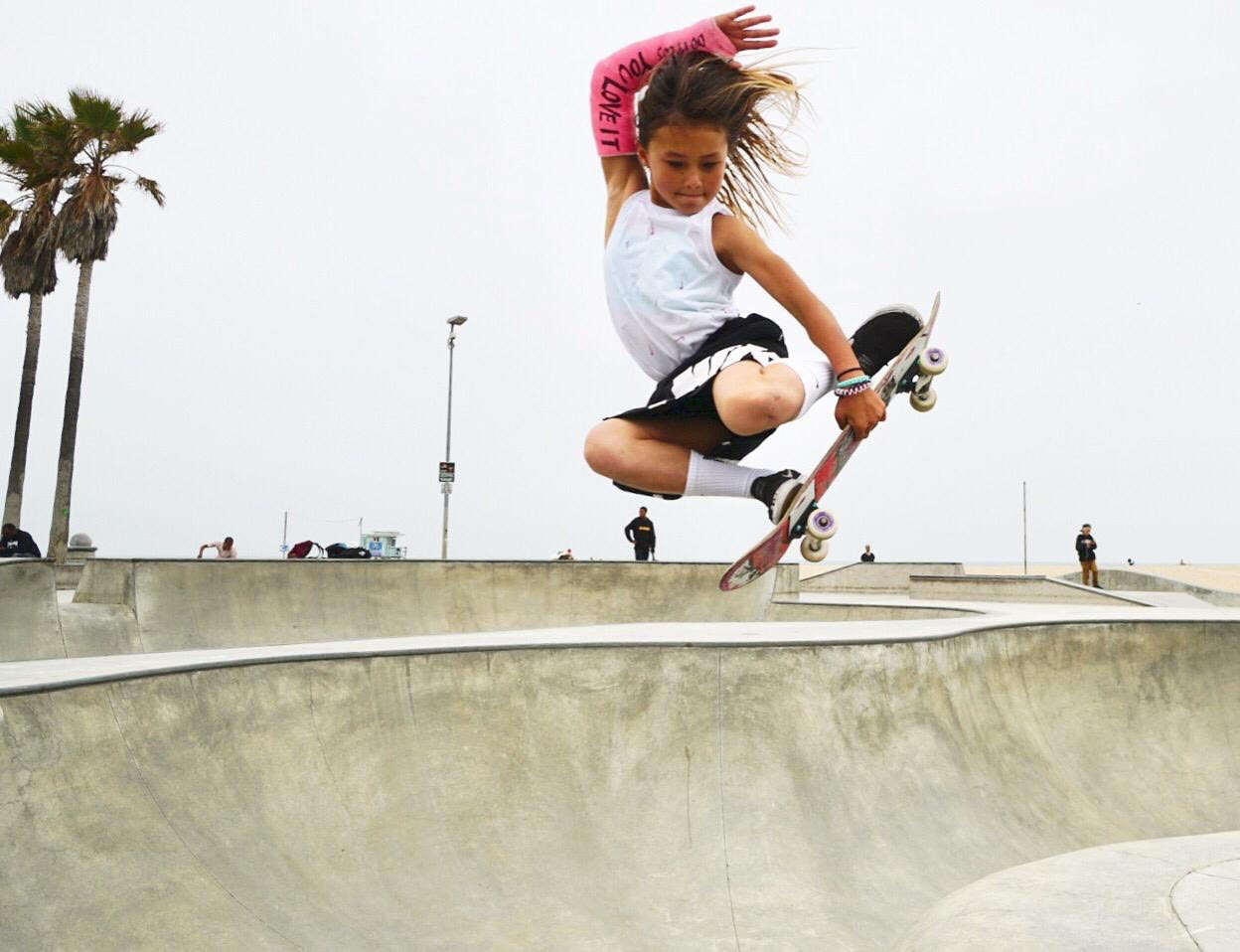 """Eleven-year-old Olympic skateboard hopeful """"lucky to be alive"""" after horrific injury"""